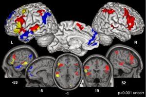 Resonancia Magnética Funcional (RMF)